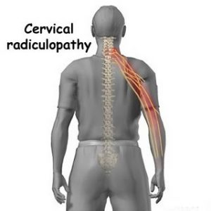 Radiculopathy Causes Symptoms Diagnosis And Treatment